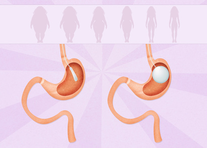 Before Considering Gastric Bypass Surgery Be Sure That It Is Covered By Your Insurance